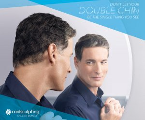 Doppelkinn behandeln mit CoolSculpting